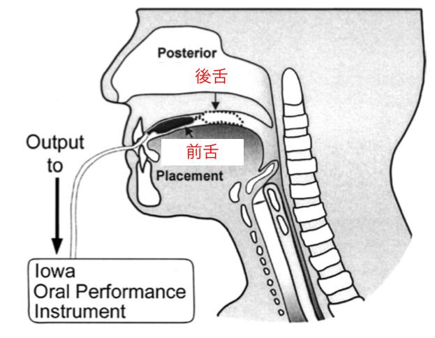 舌圧測定器を使用したリハビリテーション
